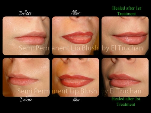 Semi Permanent Lip Blush By El Truchan Before - After - Healed by El Truchan CPCP @ Perfect Definition
