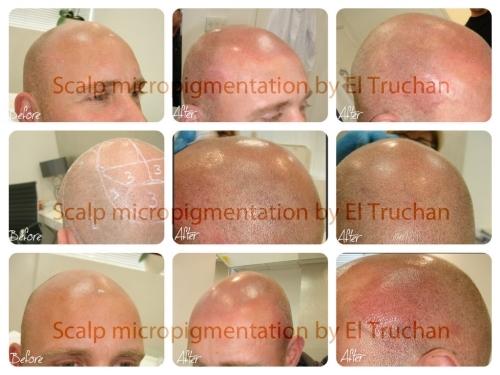 Hair Simulation Restoration Micropigmentation by El Truchan