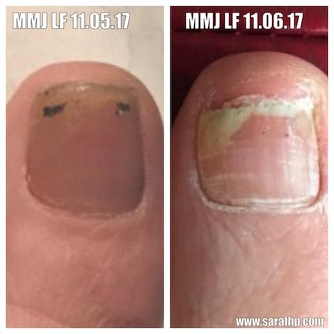 Mmj Lf 11 05 17 - 11 06 17 comparison photo