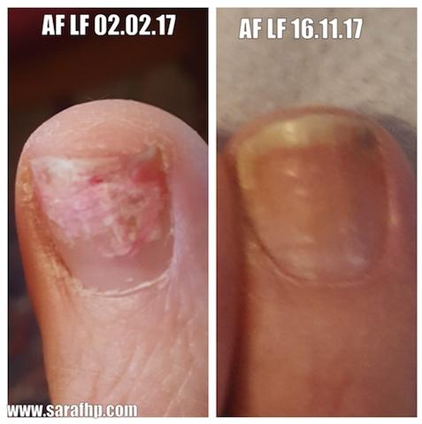 AF LF 02.02.17 -16.11.17 comparison photo