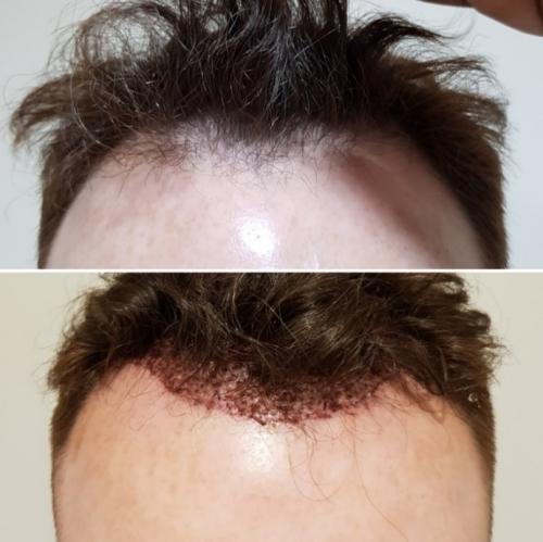 Fue Hair Transplant London