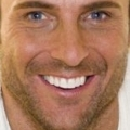 Discounted professional Tooth Whitening