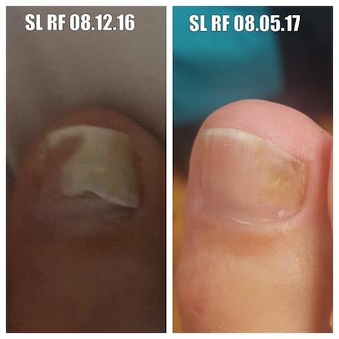 SL Rf 08 12 16  - 08 05 17 Comparison Photo