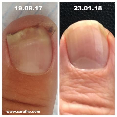 AJ Left Thumb 19 09 17 - 23 01 18 comparison photo