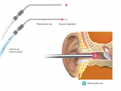 Microsuction Ear Wax Removal service
